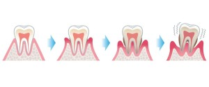 Progression form healthy gums to gingivitis to periodontists