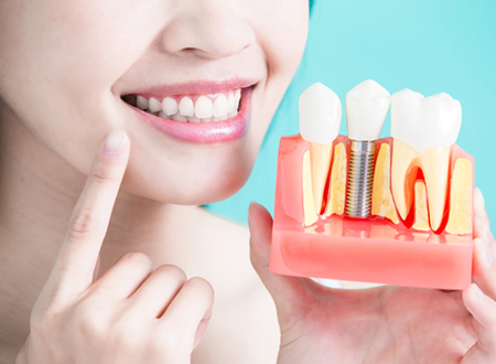 should i get dental implants in Tucson, AZ area